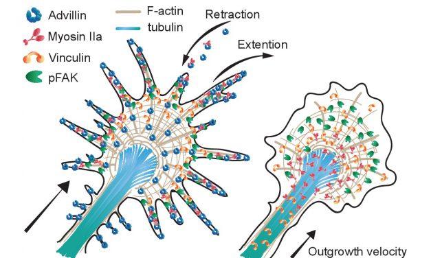 診斷坐骨神經痛的精準醫學 透過細胞骨架蛋白質可望準確恢復