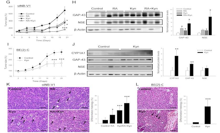 神經母細胞瘤治療策略的新曙光